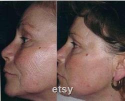 AgeLOC Galvanic Spa Facial Galvanic Spa Gels