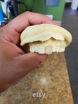 Prothèse flipper personnalisée (1 à 2 dents)
